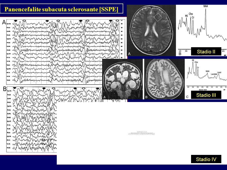 Panencefalite subacuta sclerosante [SSPE]